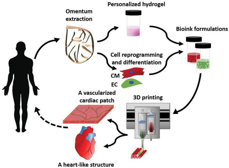 Pojednostavljeni prikaz postupka pripreme matičnih stanica i nestaničnog tkiva i izrade